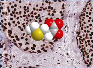 Breast cancer cells in a normal gland stained as small brown ovoids. Also shown is an inhibitory molecule that has been digitized to indicate the level of CtBP expression,  with red showing high levels, yellow showing low levels, and white showing no expression.